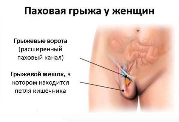 Паховая грыжа у женщин - проблему с ней могут быть причиной схваткообразных болей внизу живота