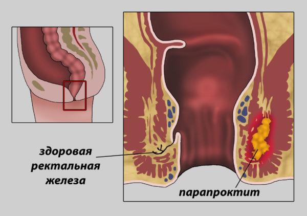 Парапроктит - воспаление ректальной железы