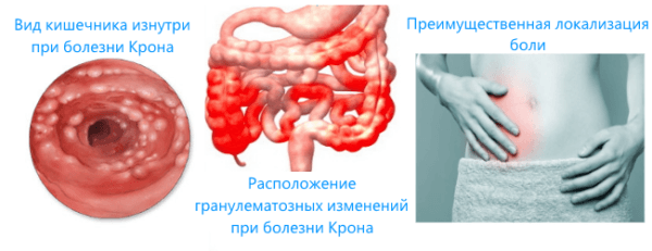 Патологический процесс в кишечнике при болезни Крона