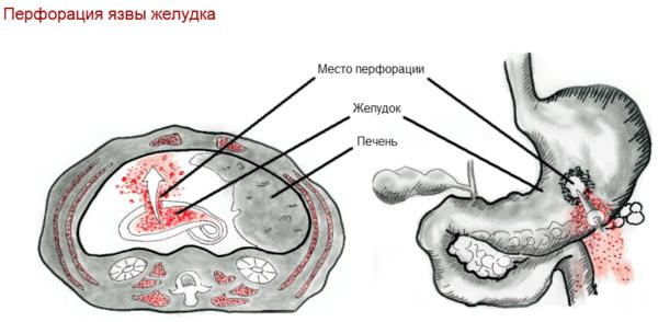 Перфорация стенок желудка