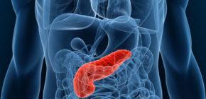 Стеатоз поджелудочной железы что это такое