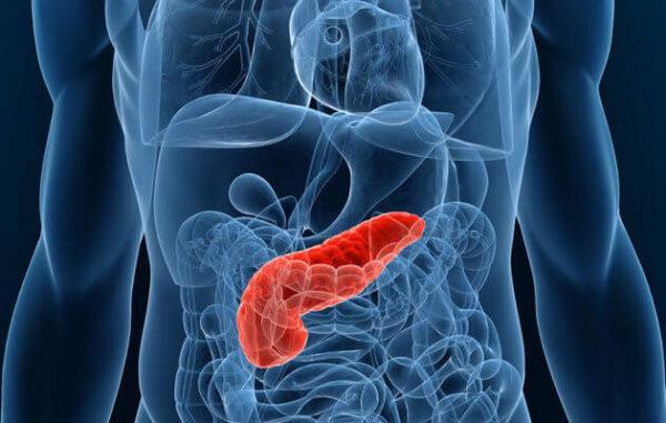 Почему развивается рак поджелудочной железы