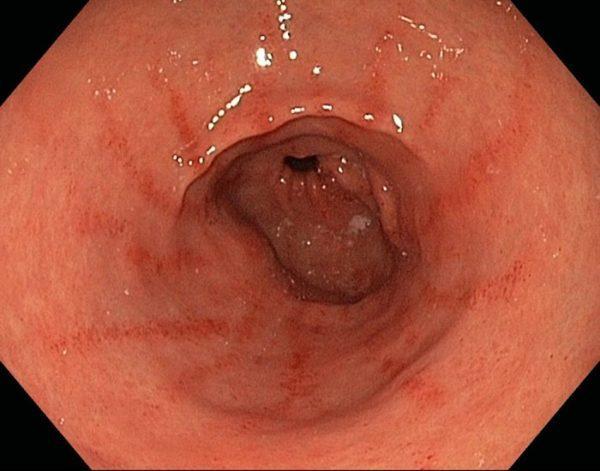 Поверхностный гастродуоденит, который без лечения быстро перерастет в хронический