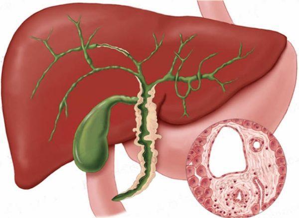 При деформации желчного пузыря повышается вероятность развития перитонита