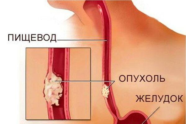 При постоянном воздействии желудочного сока повышается вероятность развития злокачественного поражения пищевода