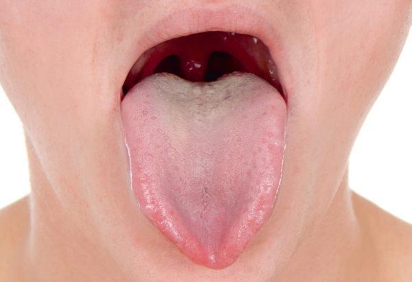 Беловатый налет может быть при стоматологических проблемах