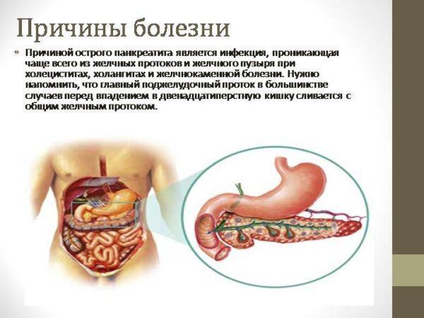 Причины острого панкреатита