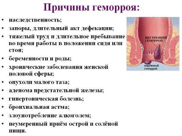 Причины появления проктологического недуга