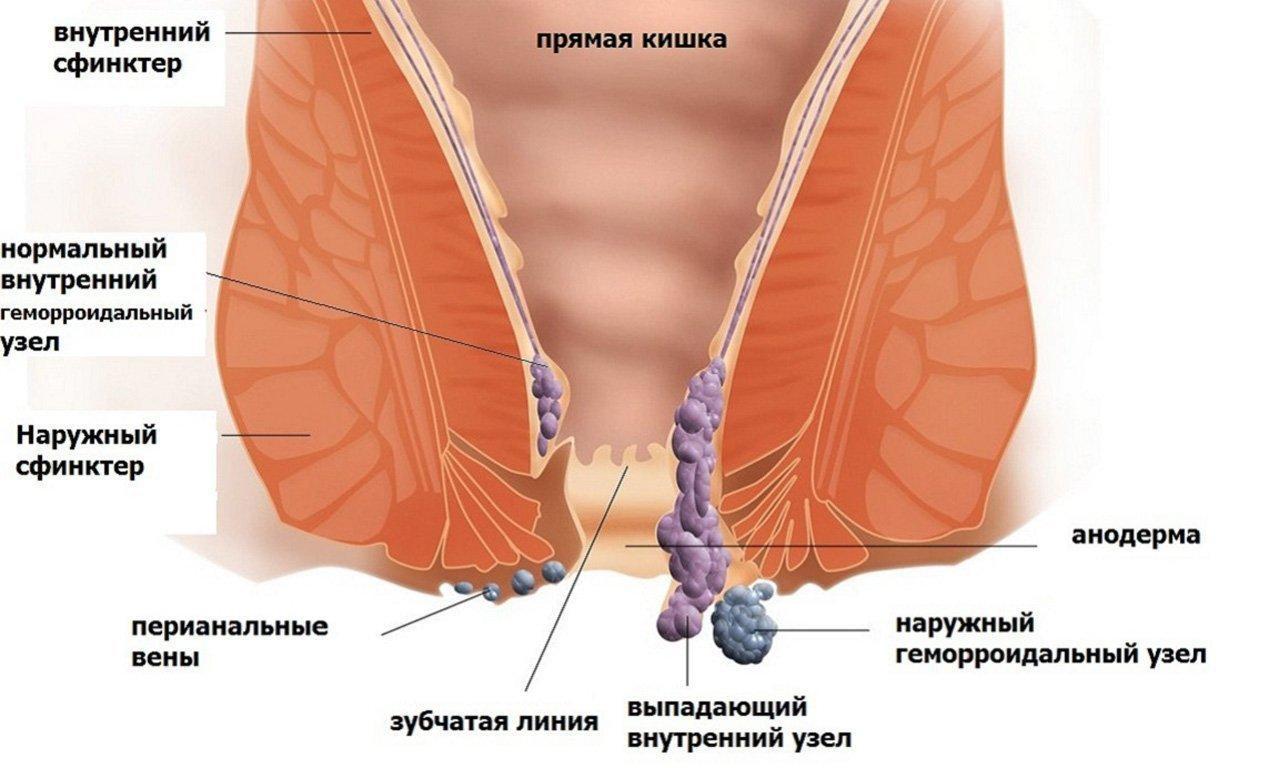Симптомы зуд в анале