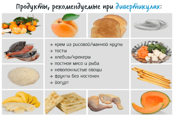 Продукты, рекомендуемые при дивертикулах кишечника