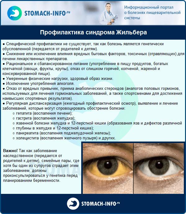 Профилактика синдрома Жильбера