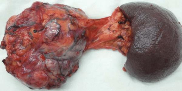 Рак поджелудочной железы, 4 стадия