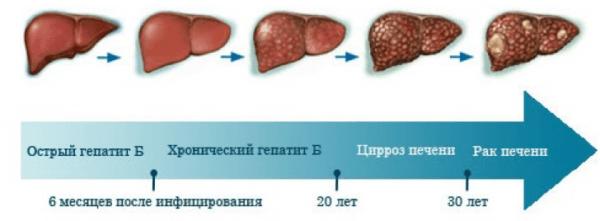 Развитие болезни, которое начинается с гепатита B
