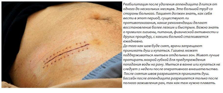 Питание после операции аппендицита через неделю