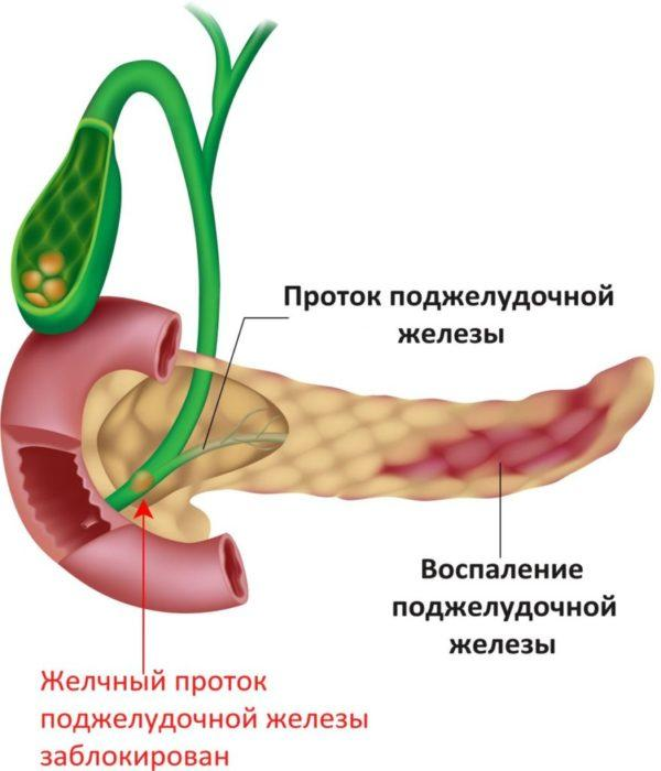 Нарушение оттока панкреатического сока из-за закупорки протока