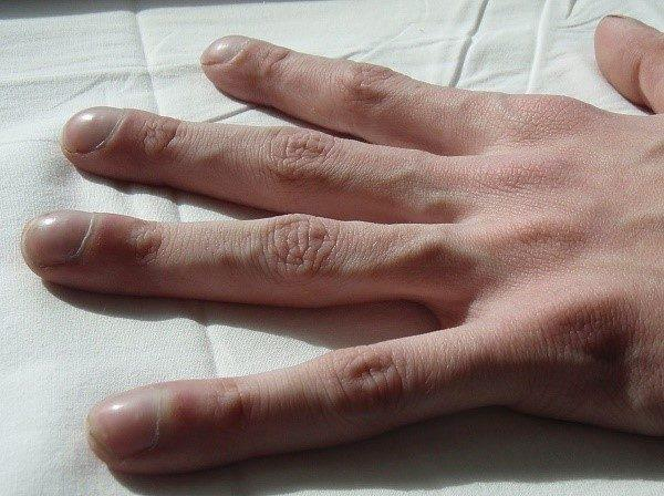 Рука человека, страдающего муковисцидозом