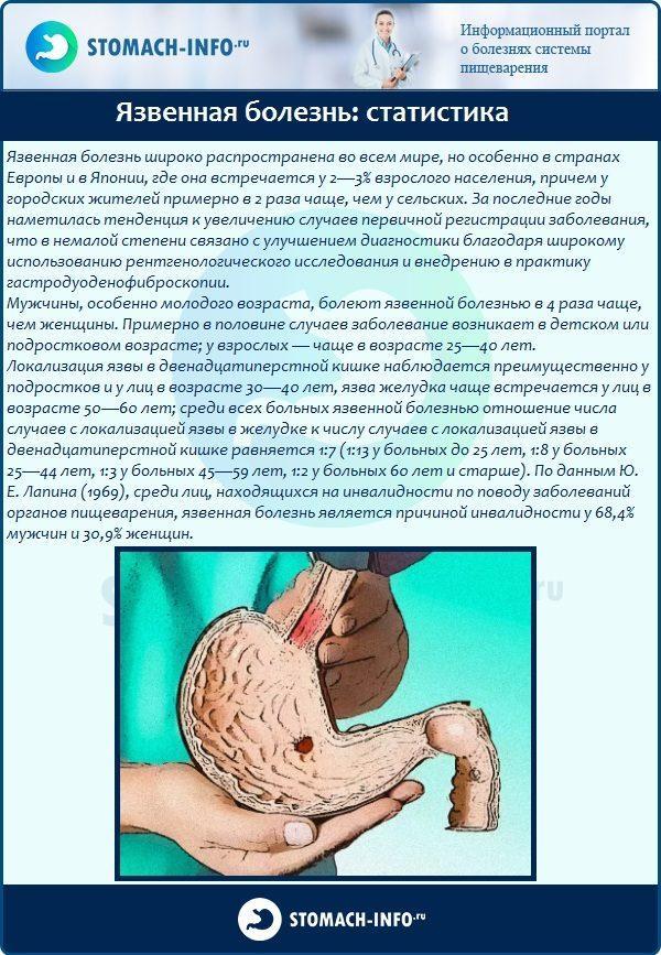 Язвенная болезнь: статистика