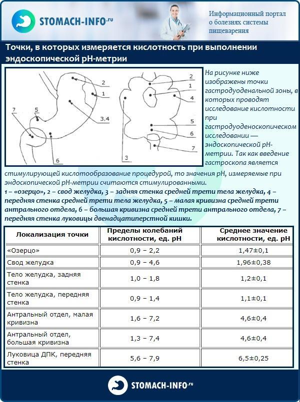 Точки, в которых измеряется кислотность при выполнении эндоскопической рН-метрии