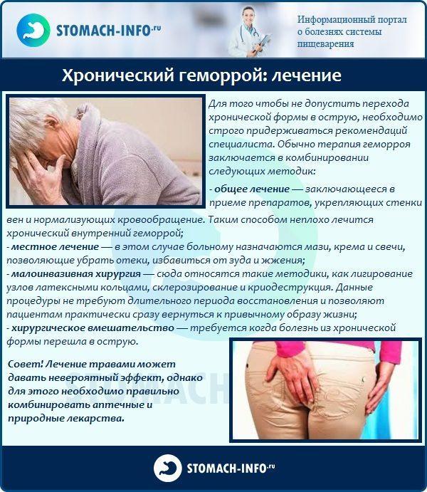 Хронический геморрой: лечение
