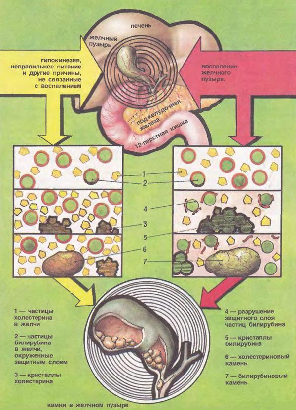 Схема образования камней в желчном пузыре