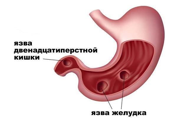 Схематическое изображение язвенного заболевания органов ЖКТ