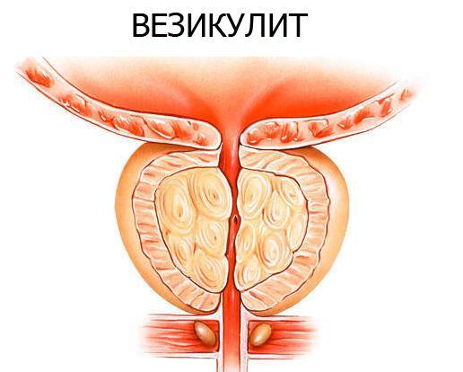 Схематичное изображение везикулита