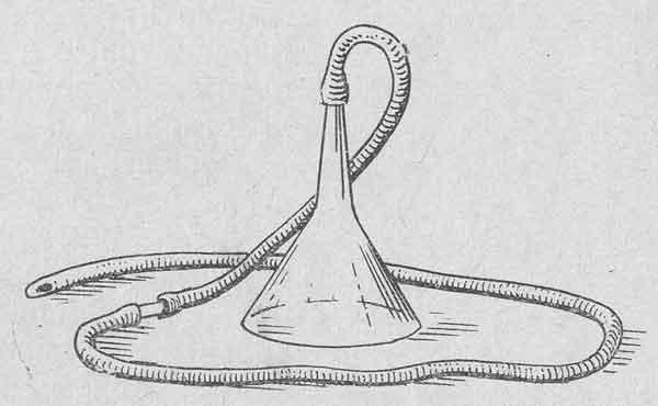 Сифонная клизма - тяжелая для пациента манипуляция, поэтому необходимо внимательно следить за его состоянием во время процедуры
