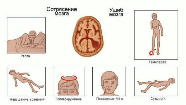 Сигналы сотрясения мозга