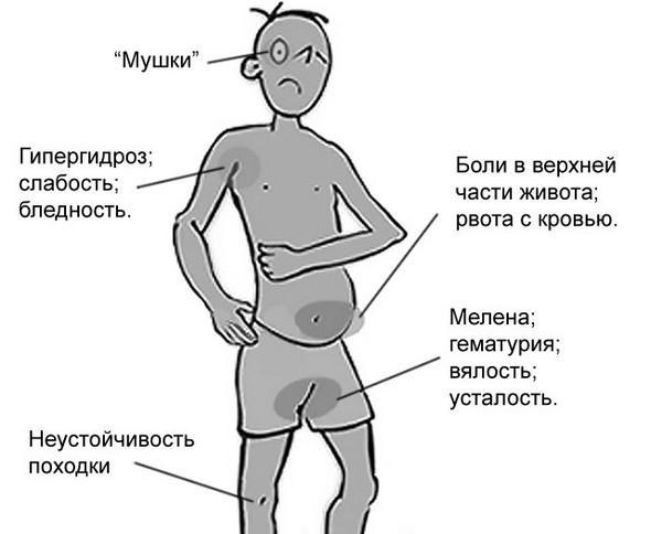 Симптомы кишечного кровотечения