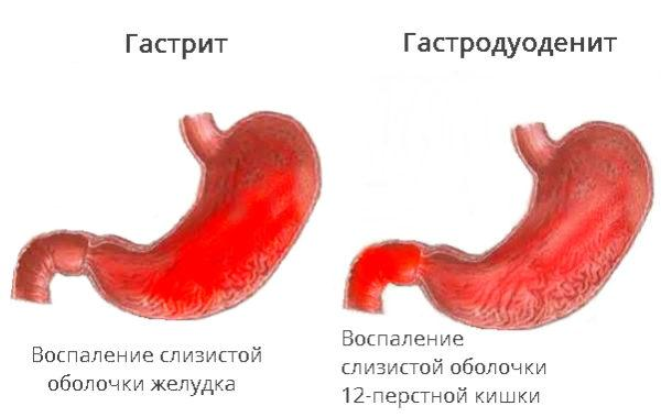 Слизистая желудка при гастродуодените и гастрите