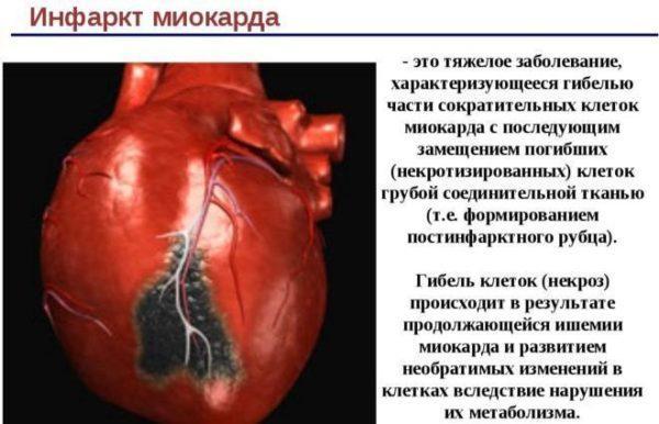 Смертность от инфаркта миокарда существенно ниже, чем от инфаркта кишечника