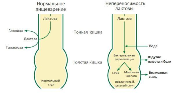 Сравнение нормального пищеварения и непереносимости лактозы