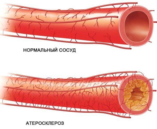 Сравнение нормального сосуда с пораженным атеросклерозом - одной из возможных причин дивертикулита сигмовидной кишки
