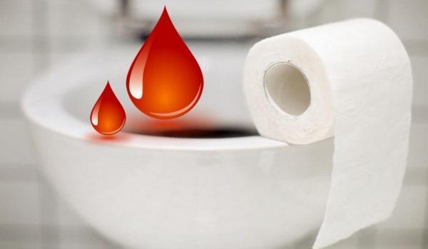 Стул с кровью у взрослого способен приобретать разный характер