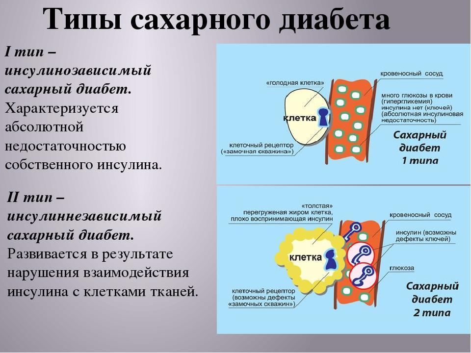 Сахарный диабет 1 и 2 тип реферат