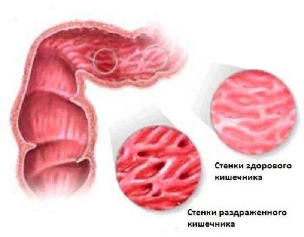 У человека с СРК стенки кишечника почти всегда раздраженные
