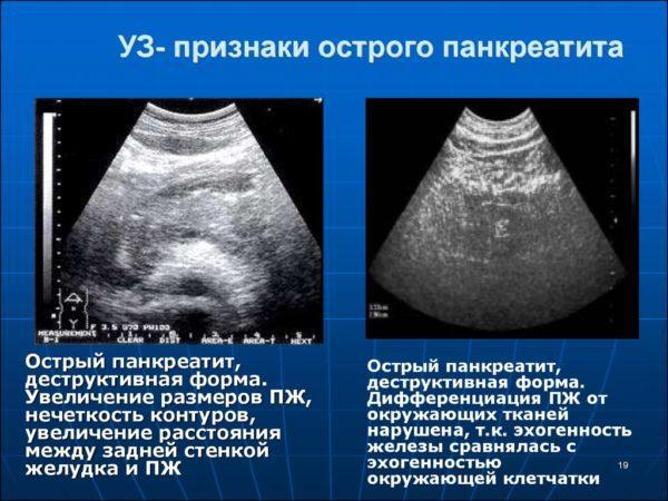УЗ-признаки острого панкреатита