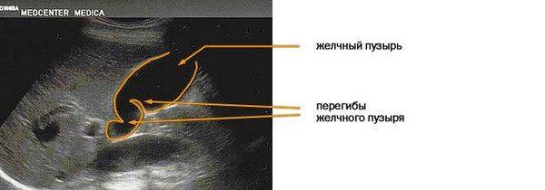УЗИ желчного пузыря