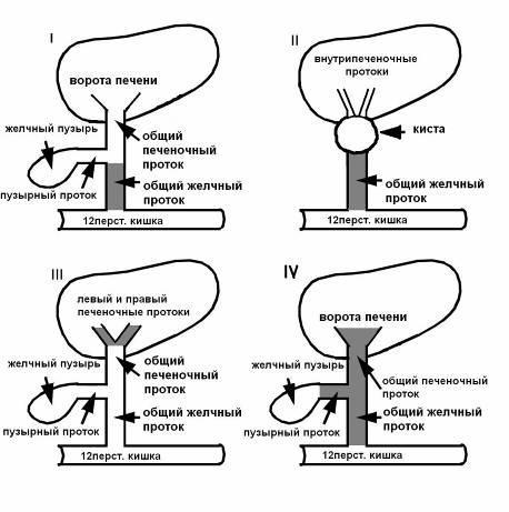 Варианты атрезии желчевыводящих протоков