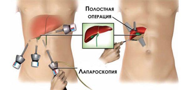 Виды хирургического вмешательства