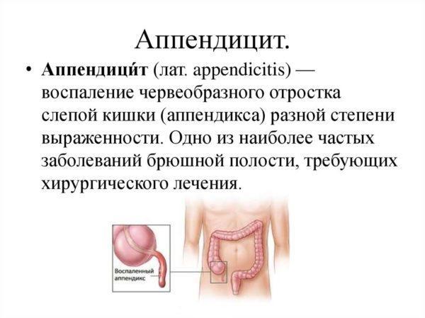 Воспаление аппендикса (аппендицит)