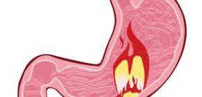 Воспаление желудка: симптомы и лечение