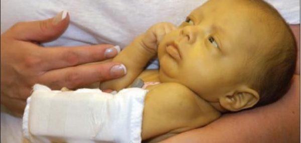 Высокий билирубин у новорожденных