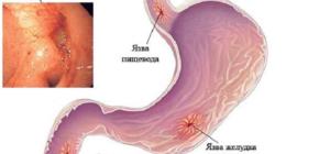 Язва пищевода – это последствие разъедания стенок слизистой оболочки данного органа кислым желудочным соком
