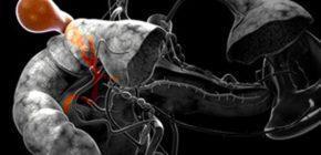 Загиб желчного пузыря - симптомы и лечение