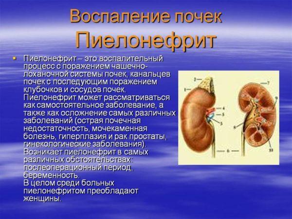 Воспаление почек - пиелонефрит