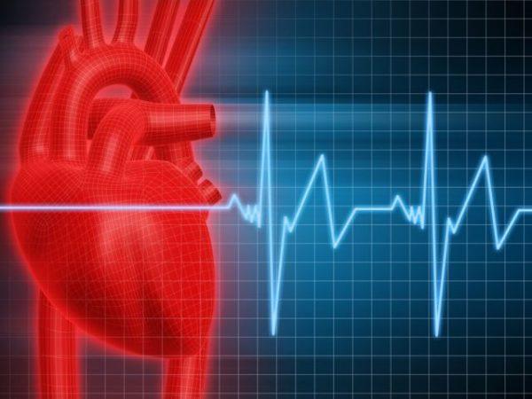 Аритмия - нарушение частоты и ритмичности сокращения сердца
