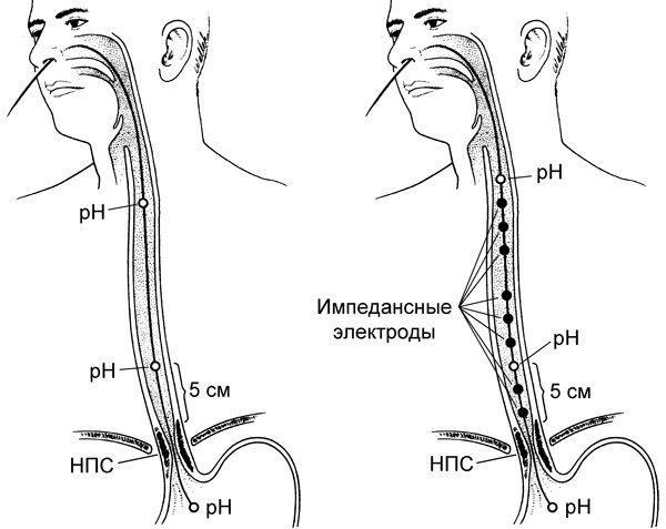 Манометрия пищевода (эзофагоманометрия) — это диагностическая процедура, что заключается в измерении силы сокращения мышц органа во время глотания