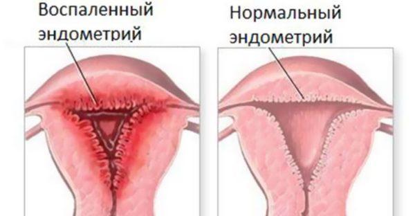 Эндометриоз - чрезмерное разрастание и воспаление слизистой, выстилающей полость матки
