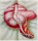 Флегмозный аппендицит